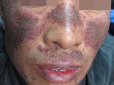 狼疮性肾炎治疗方法_本人狼疮肾炎4型,红斑狼疮和肾炎处于活动期,急找医生-